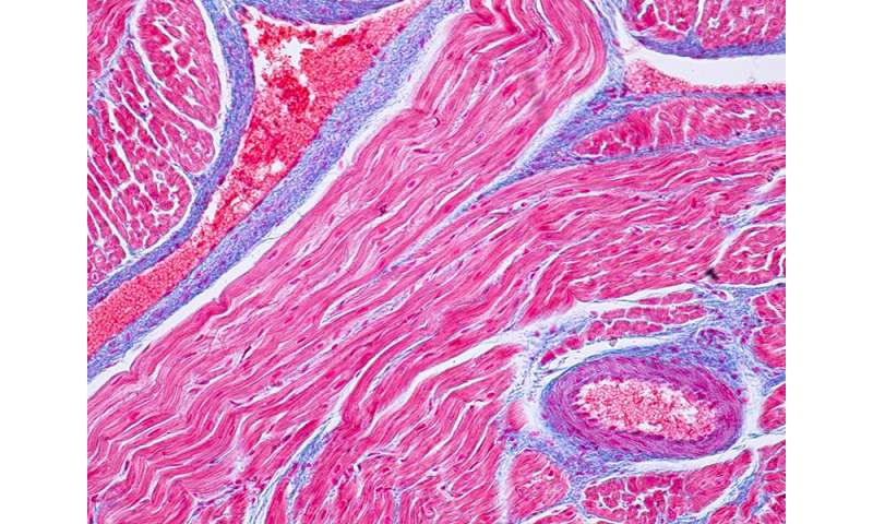Multiple mechanisms behind disease associated with unexpected heart attacks
