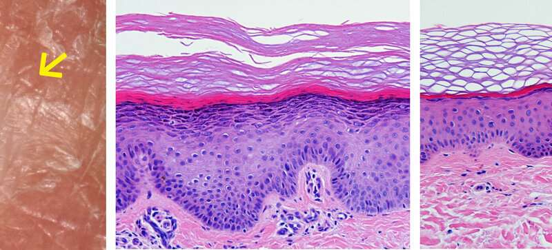 Natural gene therapy for intractable skin disease discovered