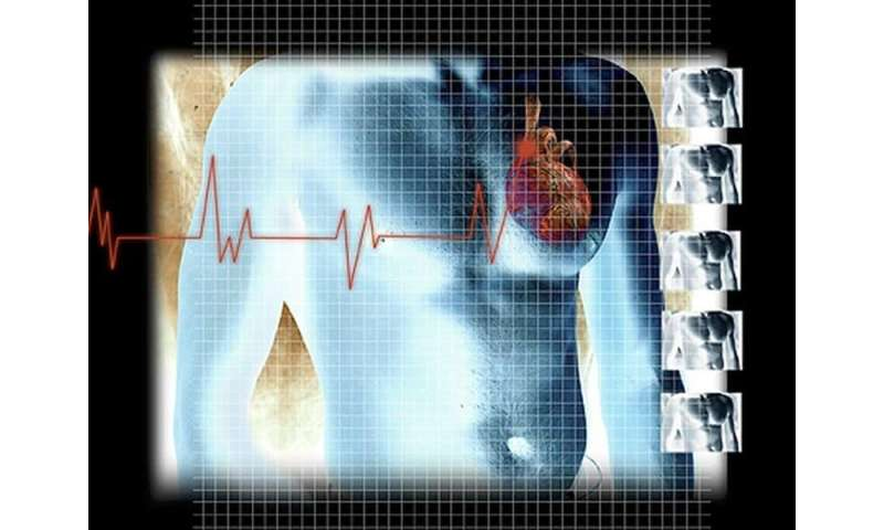 New cardiogenic shock staging system IDs mortality risk