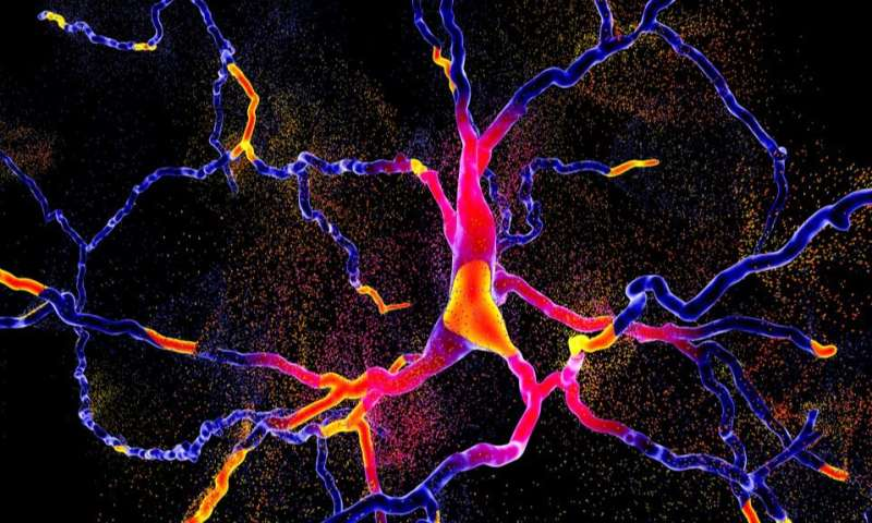 New method developed to target cause of Parkinson's