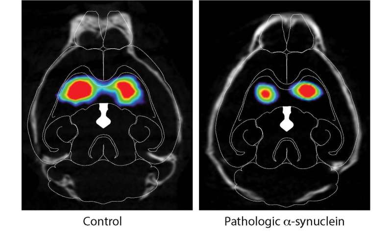 New mouse model of Parkinson's disease shows how it spreads from the gut