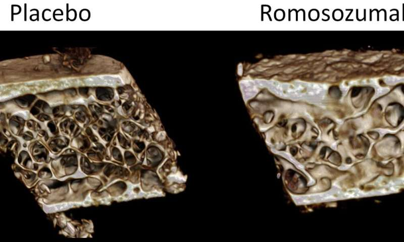 New osteoporosis therapy's dual effects on bone tissue