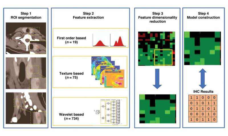 New radiomics model uses immunohistochemistry to predict thyroid nodules