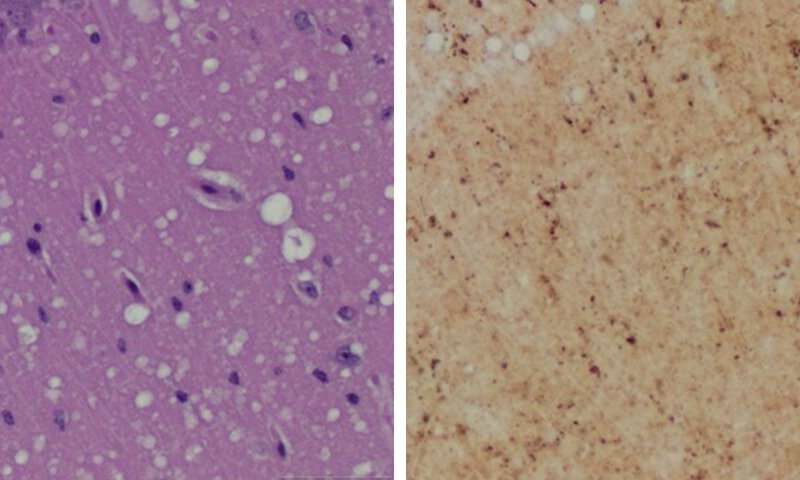New skin test detects prion infection before symptoms appear