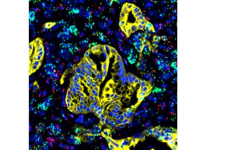 New study targets Achilles' heel of pancreatic cancer, with promising results