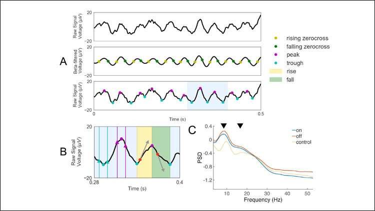 Noninvasive electrophysiological biomarker for Parkinson's disease