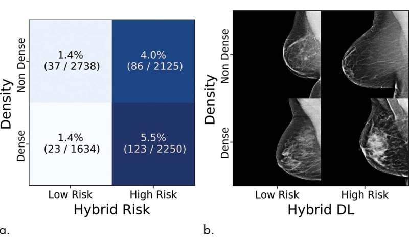 Novel artificial intelligence method predicts future risk of breast cancer