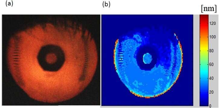 Optical imager poised to improve diagnosis and treatment of dry eye disease