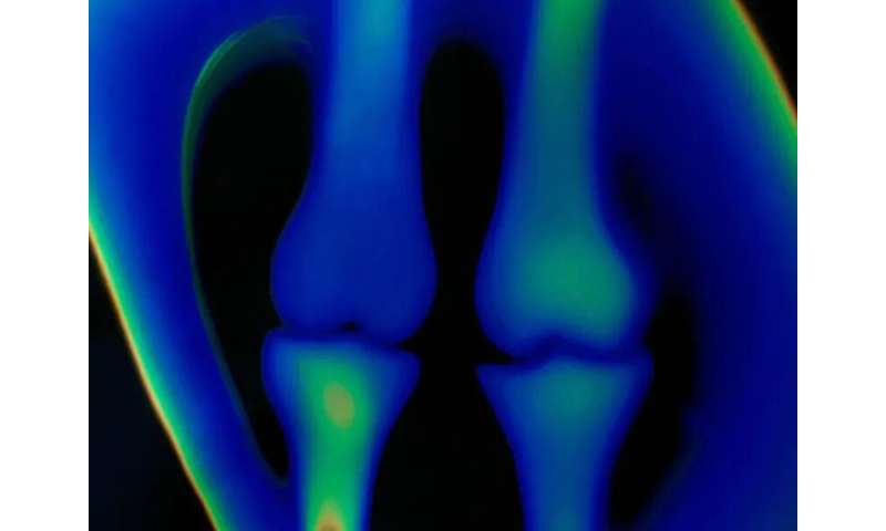 Osteoporosis undertreated in joint replacement patients