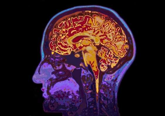 Our brains reveal our choices before we're even aware of them, study finds