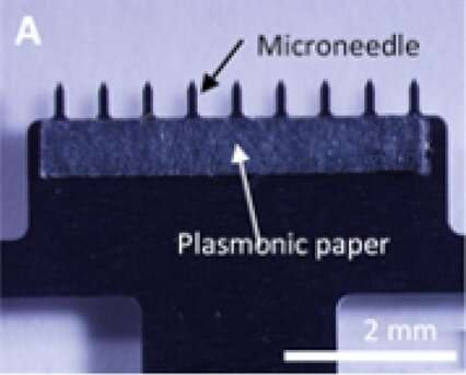 Painless skin patch collects fluid for diagnostic testing
