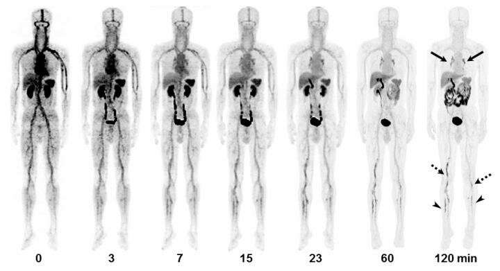 PET/CT imaging agent shows promise for better diagnosis of acute venous thromboembolism