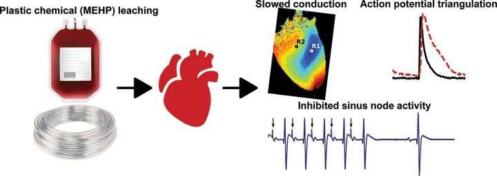 Plasticizer interaction with the heart