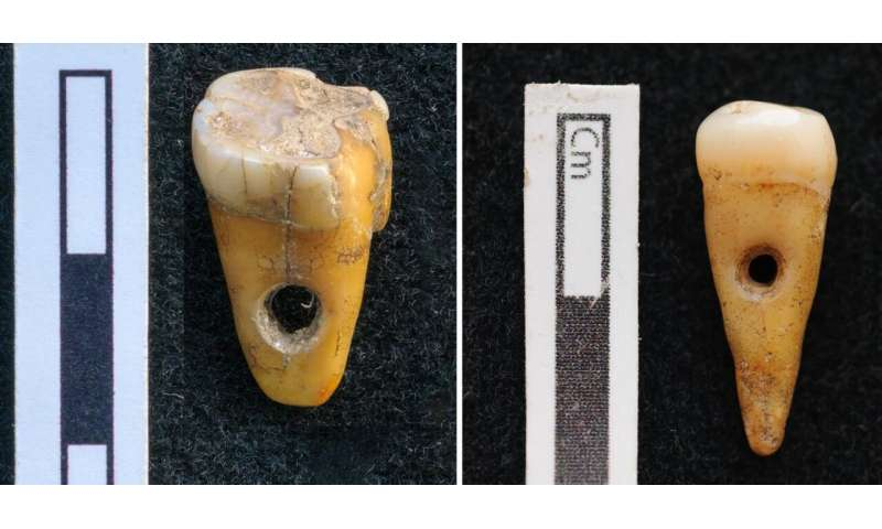 Rare find: Human teeth used as jewellery in Turkey 8,500 years ago