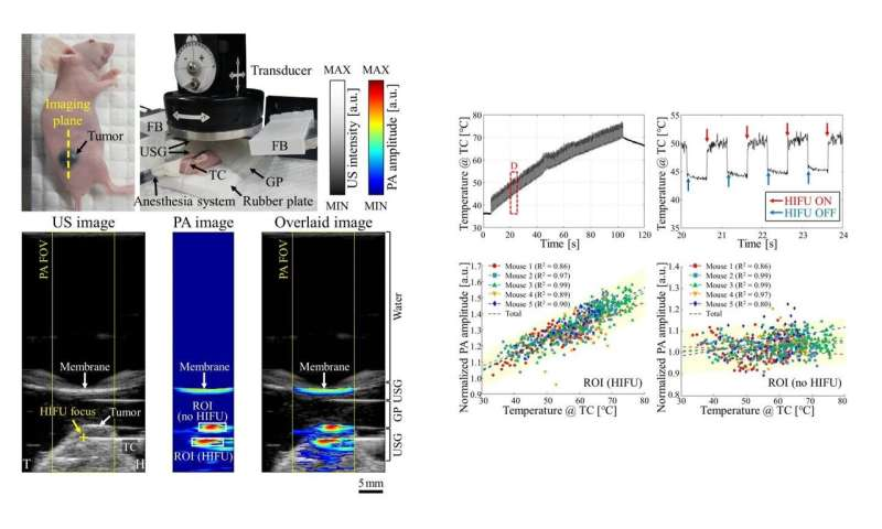 Real-time photoacoustic thermometry of tumors during HIFU treatment in living subjects