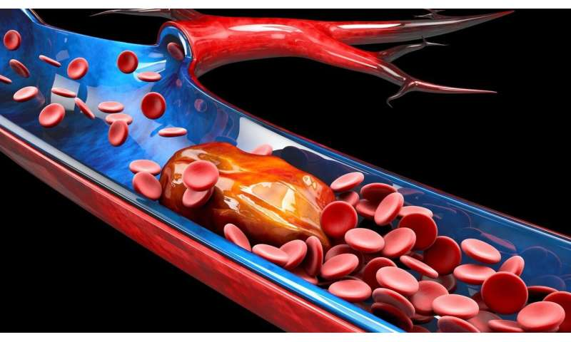 Research in Birmingham could improve outcomes for people at risk of dangerous blood clots