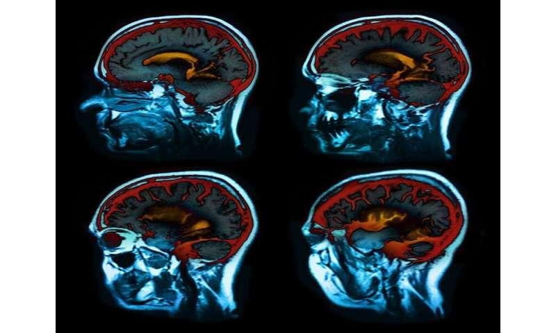 Serum biomarker linked to brain atrophy in multiple sclerosis