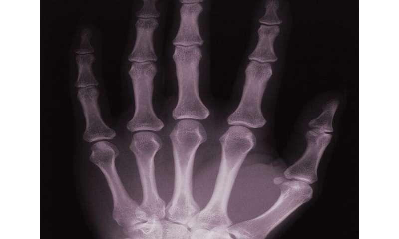 Serum IL-35 levels tied to bone loss with rheumatoid arthritis