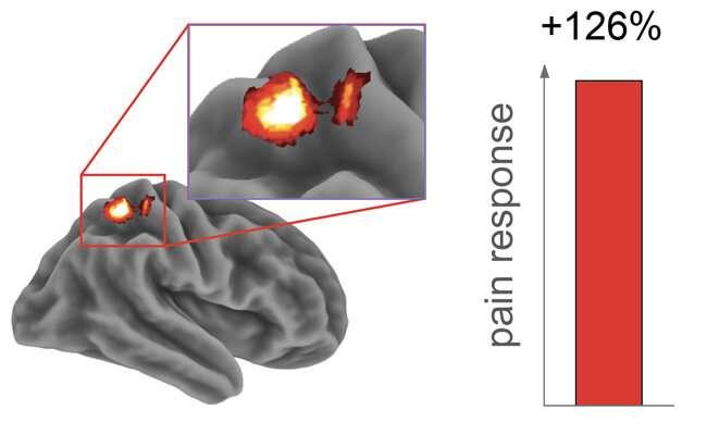 Sleep loss heightens pain sensitivity, dulls brain's painkilling response