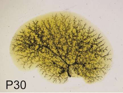 Sox9 reshapes the biliary tree in Alagille syndrome