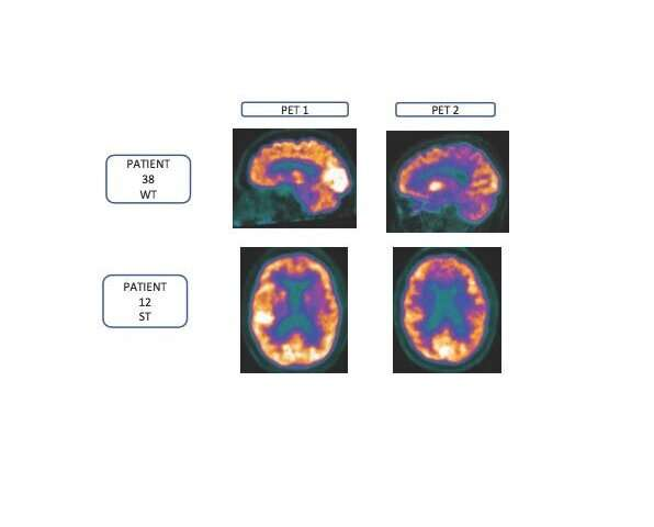 Specific multinutrient combination benefits patients with early stage Alzheimer's disease