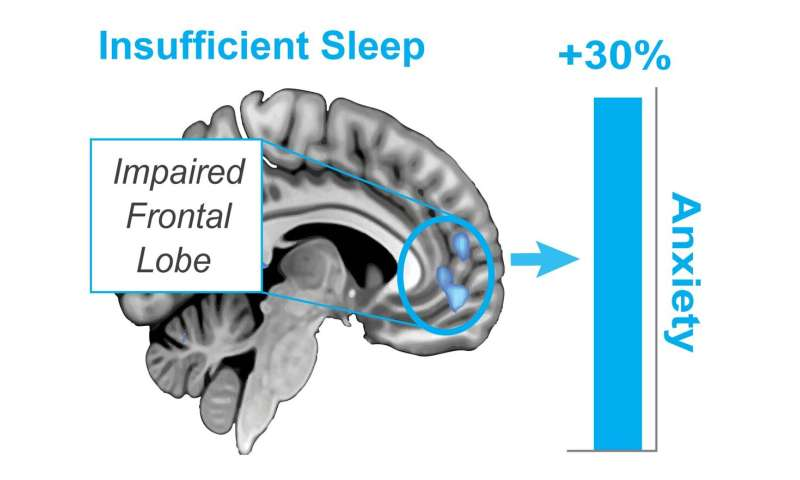 Stressed to the max? Deep sleep can rewire the anxious brain