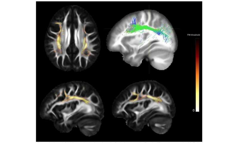 Study finds brain defects in people with a genetic risk for schizophrenia