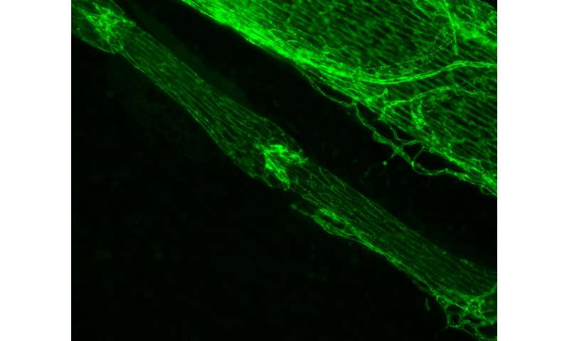 Study finds cellular processes controlling the formation of lymphatic valves