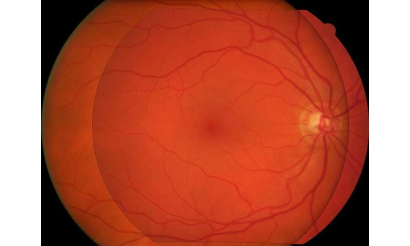 Superimposition of eye fundus images for longitudinal analysis from large public health databases