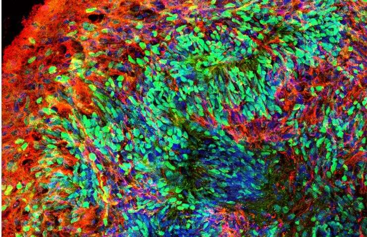 Targeting key gene could help lead to down syndrome treatment