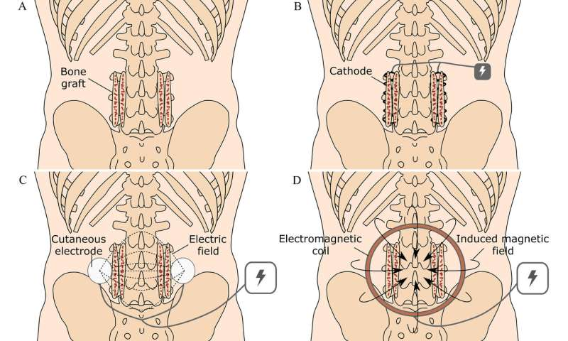 The effectiveness of electrical stimulation in producing spinal fusion