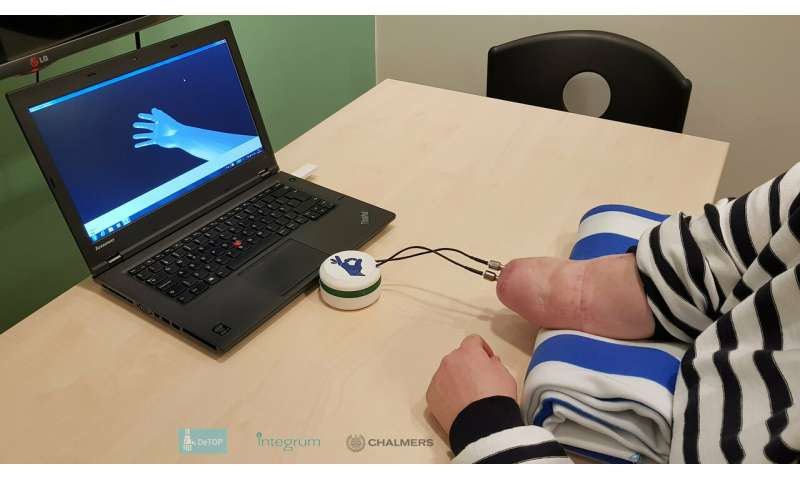 The first dexterous and sentient hand prosthesis has been successfully implanted