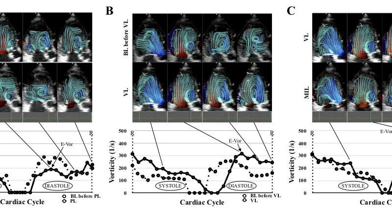 The pressure difference and vortex flow of blood in the heart chambers may signal heart dysfunction