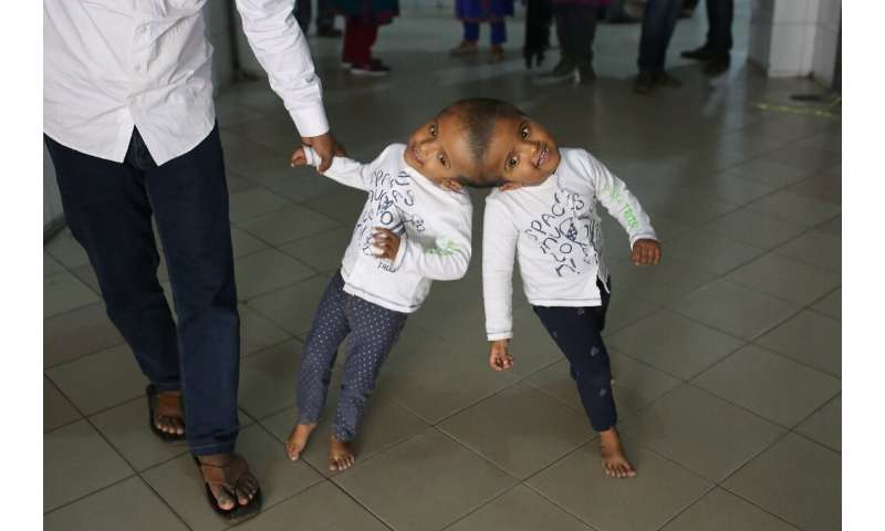 The twins, named Rabeya and Rukaya, had their skulls and brains successfully separated in a marathon 30-hour operation carried o
