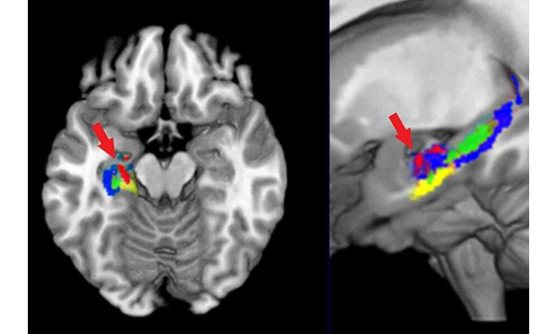 Three ways studying organic chemistry changes the brain