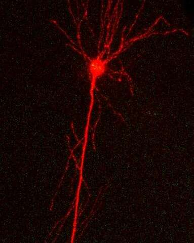 Tracking Alzheimer's disease pathology in single neuronal cells