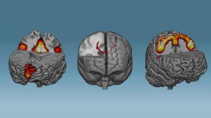 Train your brain, change your brain
