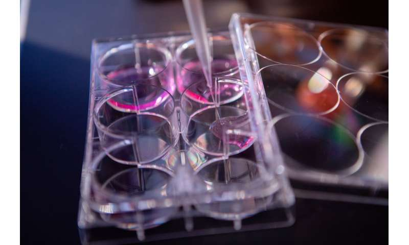Turning a patients' own cells into cancer fighters