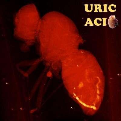 Uric acid pathologies shorten fly lifespan, highlighting need for screening in humans