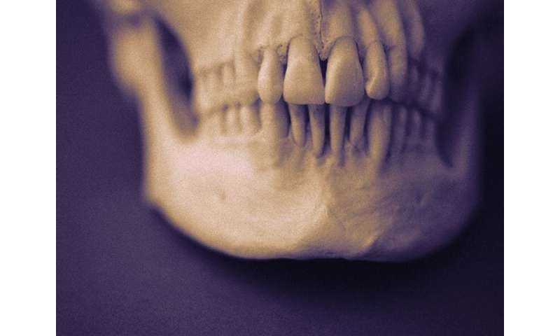 Vertical plating offers benefit for mandibular body fractures