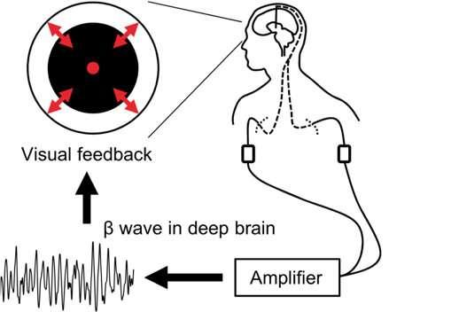 Voluntary control of brainwaves in deep brain of patients with Parkinson's disease
