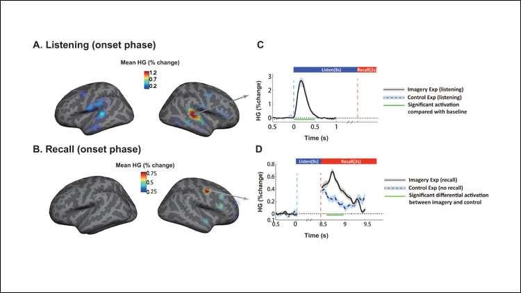 Watching music move through the brain