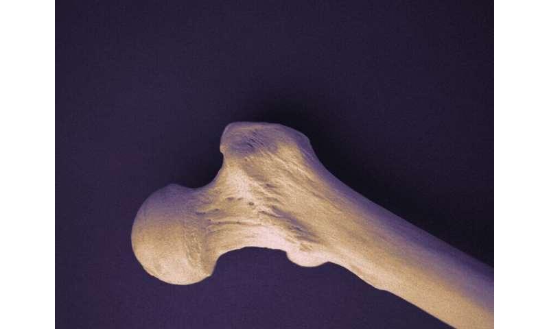 Perte de poids liée à la perte de densité osseuse de la hanche chez les personnes âgées