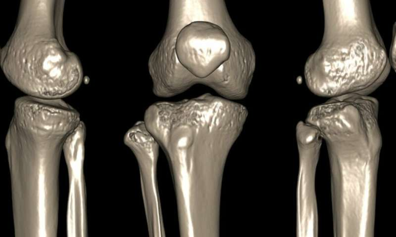 What makes joints pop and crack and is it a sign of disease?