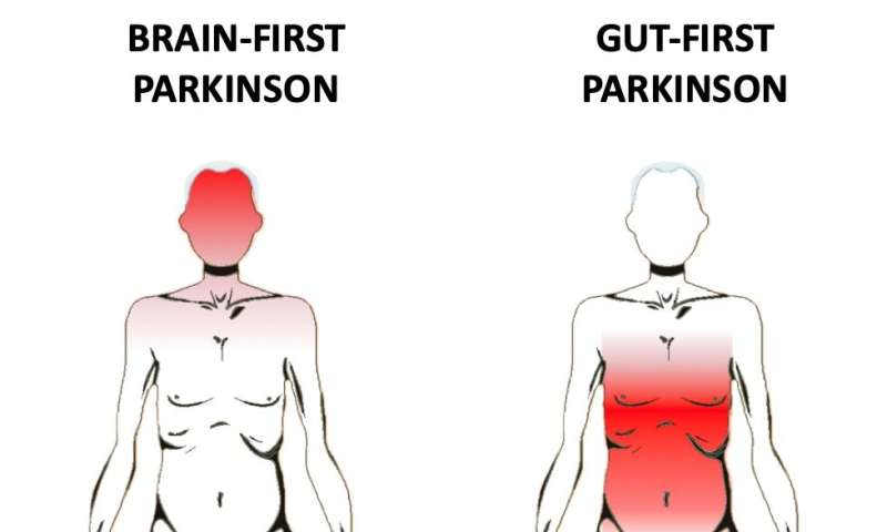 Where does Parkinson's disease start? In the brain or gut? Or both?