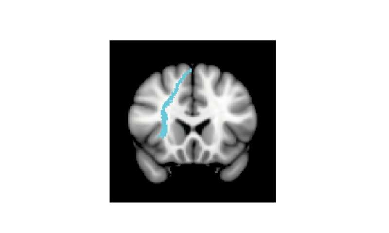 White matter affects how people respond to brain stimulation therapy