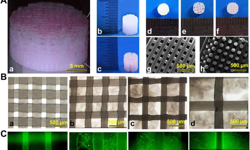3-D bioprinting constructs for cartilage regeneration