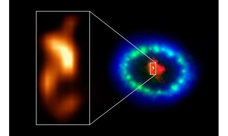 ALMA finds possible signs of a neutron star in the 1987A supernova