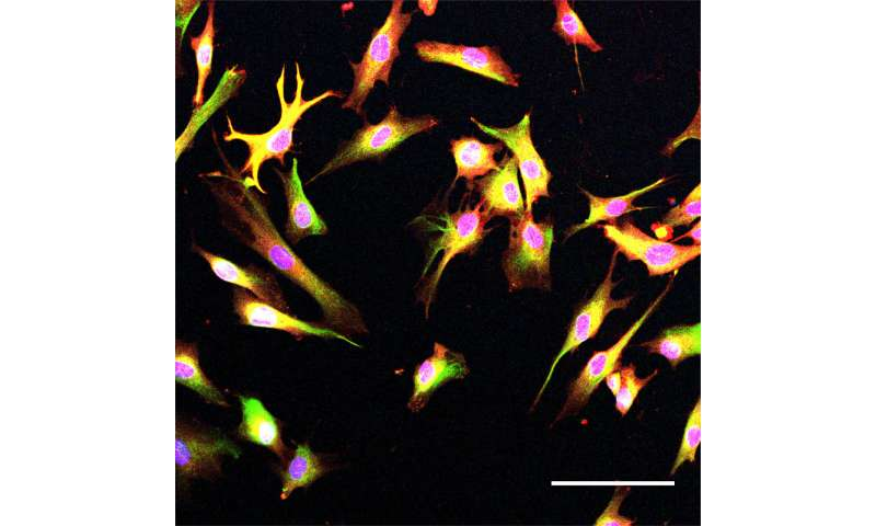 Alzheimer's risk gene disrupts endocytosis, but another disease-linked gene could help