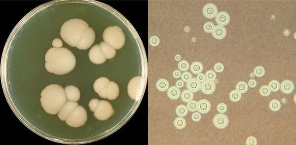 A new hybrid fungus is found in hospitals and linked to lung disease
